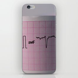 Strip of a human electrocardiogram iPhone Skin