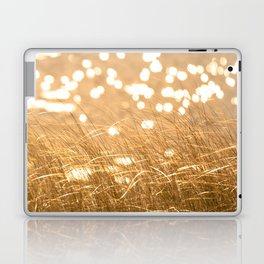 Seeing Spots Laptop & iPad Skin