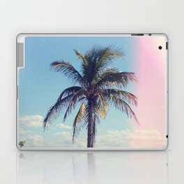 Palm Tree Light Leak Color Nature Photography Laptop & iPad Skin