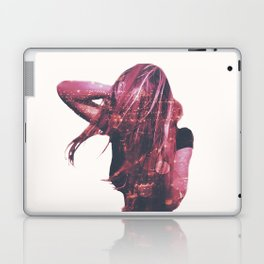 The Wombats - Glitterbug Laptop & iPad Skin
