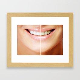 Tooth bleaching Framed Art Print