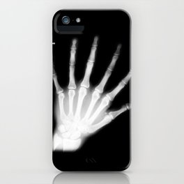 Extra Digit X-Ray iPhone Case