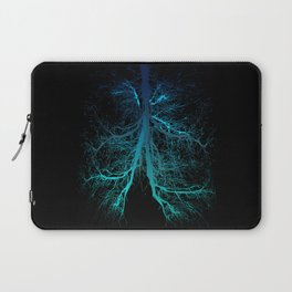 Aqua Lungs Laptop Sleeve
