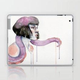 A Familiar Laptop & iPad Skin