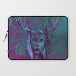 Fawn (Alternative Version) Laptop Sleeve