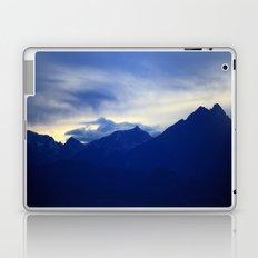 Overview Laptop & iPad Skin
