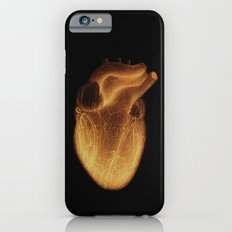Organics I (digital version) iPhone 6s Slim Case