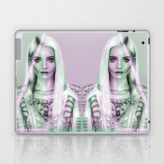 + All That Shine + Laptop & iPad Skin