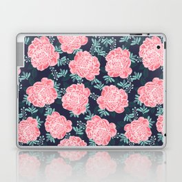 Peony Flowers navy pink and white modern colors for office home or college dorm decor Laptop & iPad Skin