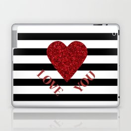 LOVE YOU Valentine print. Red glitter heart and black stripes congratulation card Laptop & iPad Skin