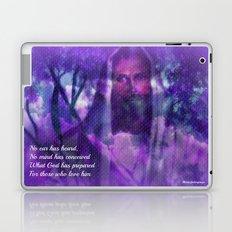Those Who Love Me by Sherri Of Palm Springs Laptop & iPad Skin