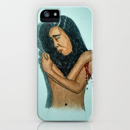 Hurts iPhone Case