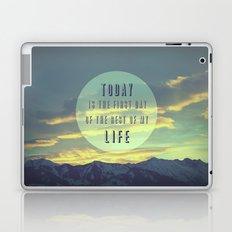 TODAY Laptop & iPad Skin
