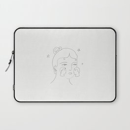 Kiss on the Cheeks Laptop Sleeve