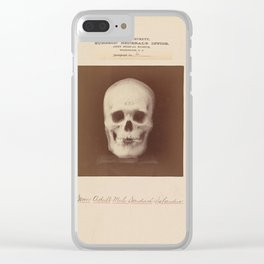 The Vintage War Surgeon Skull - Army Museum Clear iPhone Case