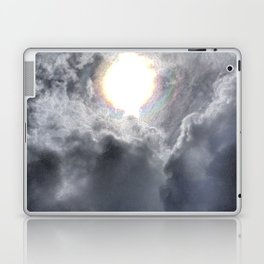 Gimme the Light Laptop & iPad Skin