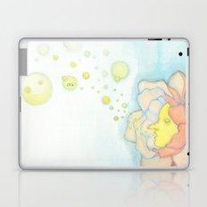 Allergy Laptop & iPad Skin