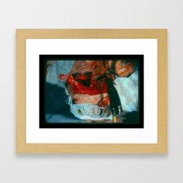 Dogbite Framed Art Print