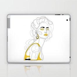 In Lemon Laptop & iPad Skin