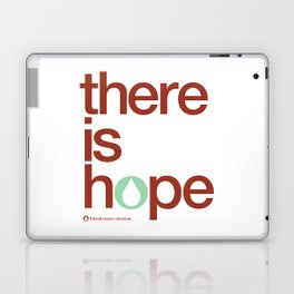there is hope - blood:water mission  Laptop & iPad Skin