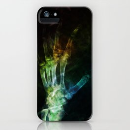X-ray 1  iPhone Case