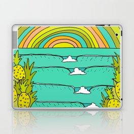 pineapple fields and endless summer vibes Laptop & iPad Skin