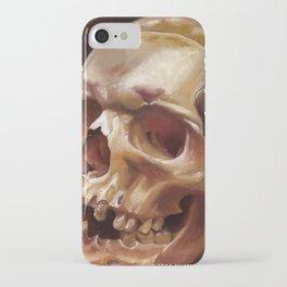 Southold Skull iPhone Case