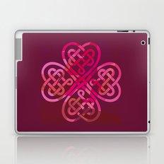 LOVEROCK 3 Laptop & iPad Skin