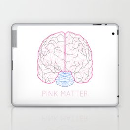 Pink Matter Laptop & iPad Skin