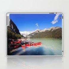 Lake Louise in Alberta, Canada Laptop & iPad Skin
