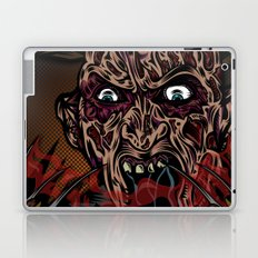 Keep Dreamin' Krueger Laptop & iPad Skin