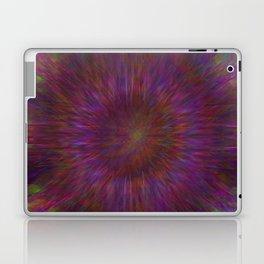 Stomach Upset Laptop & iPad Skin