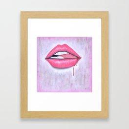 Bite it. Framed Art Print