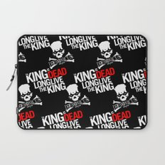 The King is dead. Long live the King. Laptop Sleeve