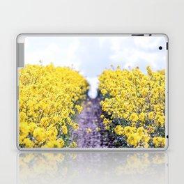 Walk Through the Yellow Laptop & iPad Skin