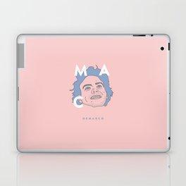 Pink and Blue Mac Laptop & iPad Skin