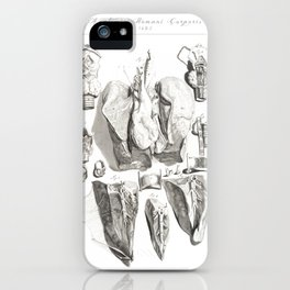 Human Anatomy Art Print LARYNX TRACHEA LUNG Vintage Anatomy, doctor medical art, Antique Book Plate iPhone Case