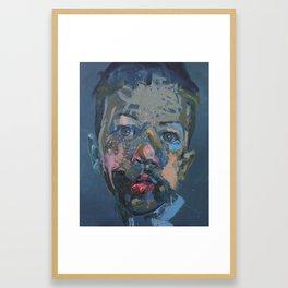 My Broken Jaw Framed Art Print