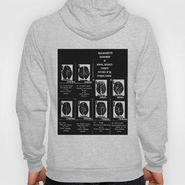 Criminal Brains Hoody