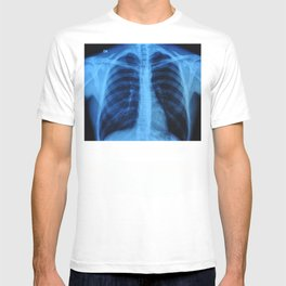 x ray medical radiography T-shirt