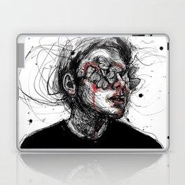 Deep wounds Laptop & iPad Skin