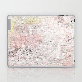 Suggestion Laptop & iPad Skin