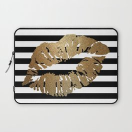 Gold Lips 2 Laptop Sleeve