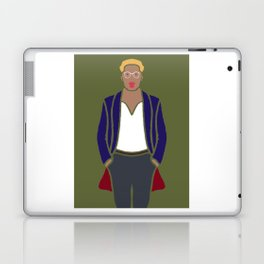 OOTD #4 Outfit Of The Day Laptop & iPad Skin
