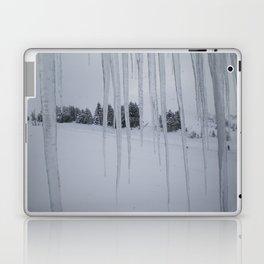 February: 2 Laptop & iPad Skin