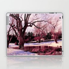 Somewhere Only We Know Laptop & iPad Skin