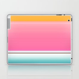 Going for the Kiss Laptop & iPad Skin