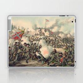 Civil War Assault on Fort Sanders Nov. 29 1863 Laptop & iPad Skin