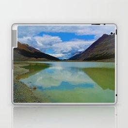 Sunwapta Lake at the Columbia Icefields in Jasper National Park, Canada Laptop & iPad Skin