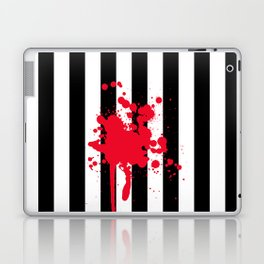 Black and White and Red All Over Laptop & iPad Skin